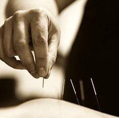 Does dry-needling hurt?